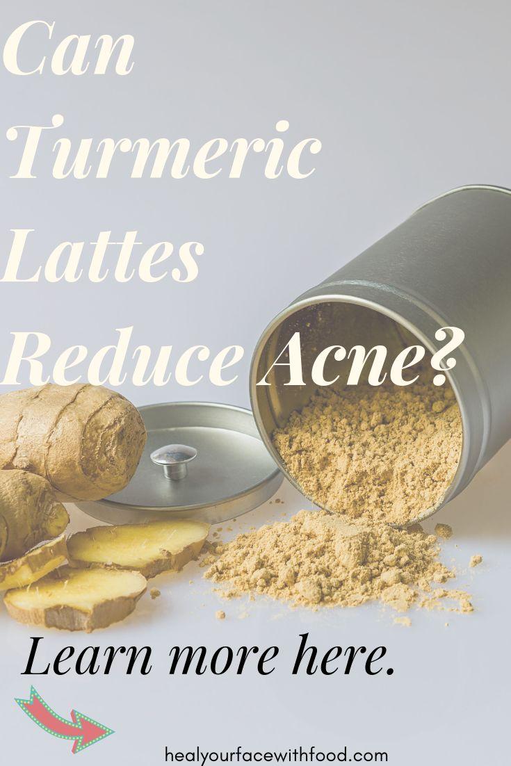 Id 233 E Pour Diy Masque Turmeric For Acne A Golden Milk